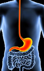 Gastroskopi