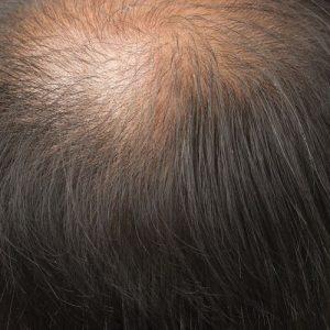 prp-saç-ekimi